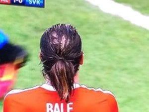 Penyokong Wales Desak Gareth Bale Buat Rawatan Rambut Atau Botak Terus